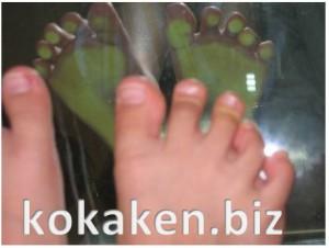 子供の足指の画像2