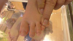 子供の足指の画像